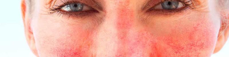 Trądzik różowaty na twarzy