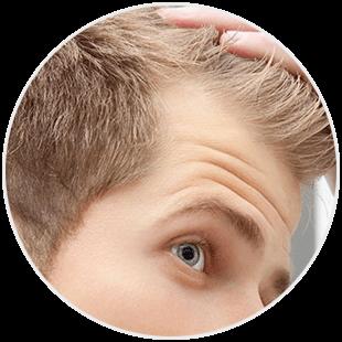 Włosy - łysienie