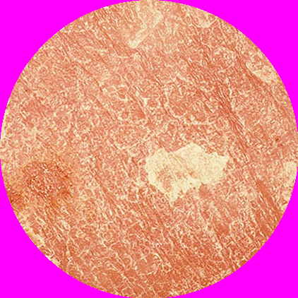 Łuszczyca skóra