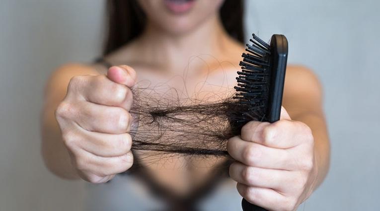wypadanie włosów po ciąży1