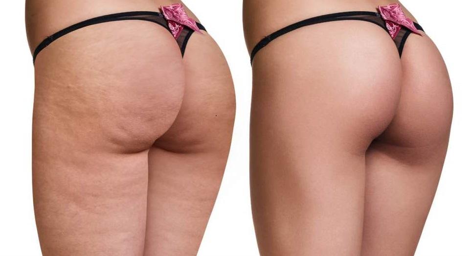 Cellulit a cellulitis- czym się różnią
