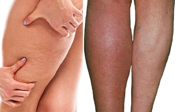 Cellulit a cellulitis