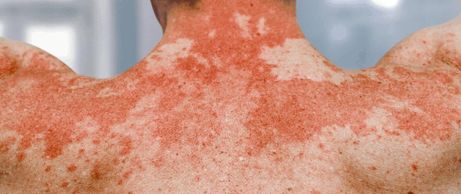 Atopowe zapalenie skóry czym można je leczyć