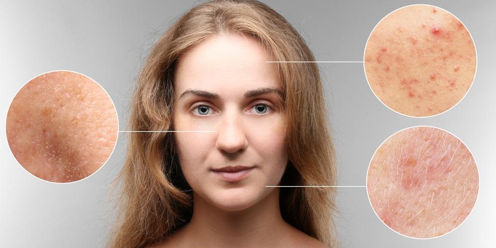 Objawy trądziku różowatego - rozpoznanie i pielęgnacja
